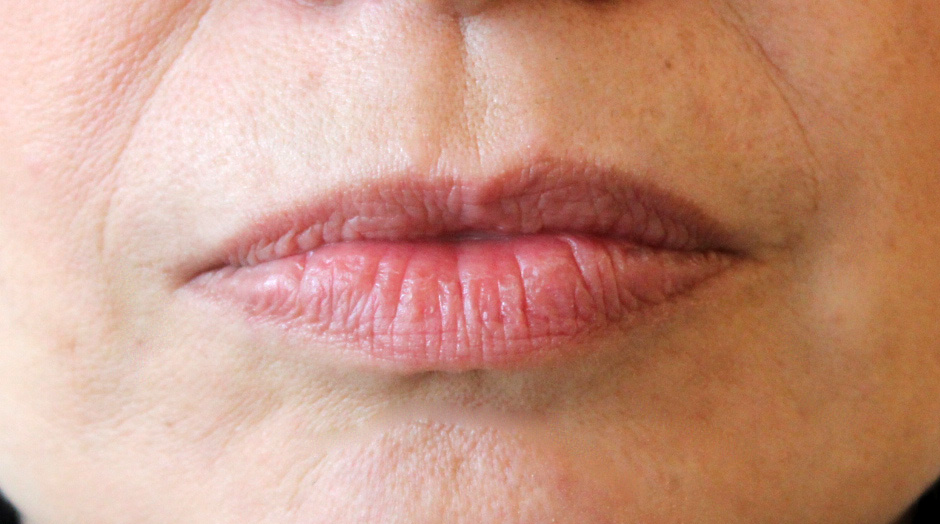 lips-before-cropped-contrat-1