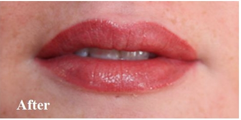 lips-after