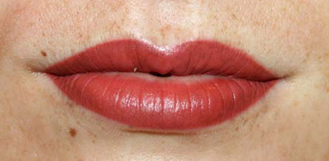 lips2-after