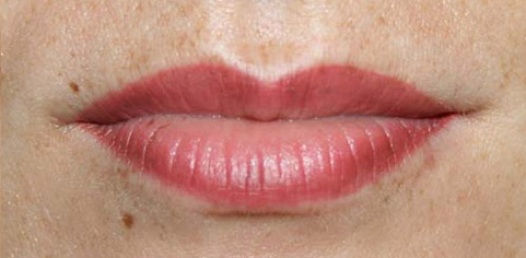 lips2-before