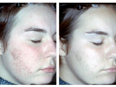 ProSystem Acne Scaring baseline to endpoint 5 months 6 peels