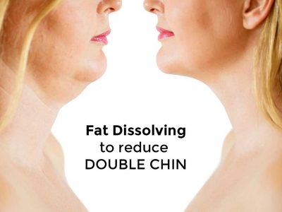 Fat Dissolving to Reduce Double Chin