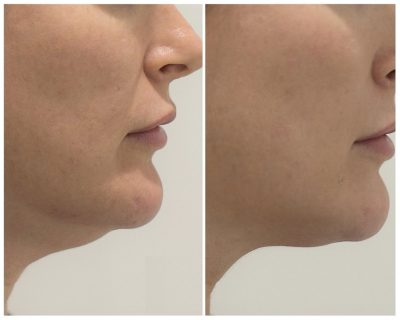 Fat Dissolving to Reduce Double Chin 3